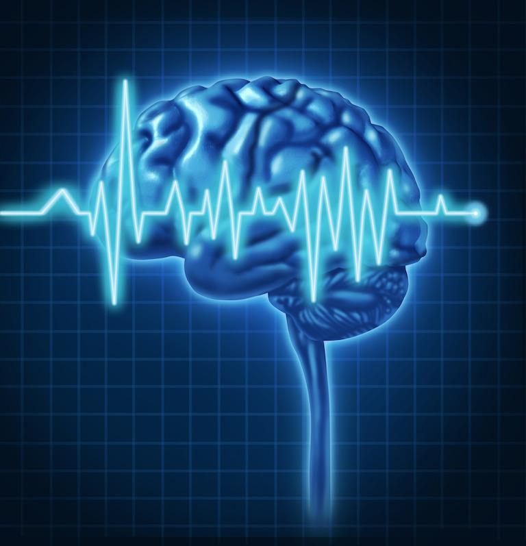 Électrophysiologie